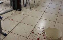 Professor que foi esfaqueado por aluno dentro de escola passa por cirurgia