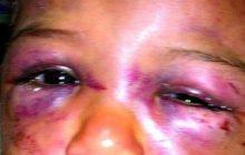 Mulher é presa acusada de agredir a filha de cinco anos na região