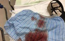 Homem tem testículo perfurado em acidente com furadeira, na região.