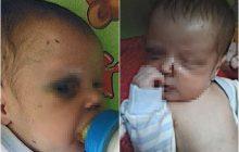 Em briga com a mulher, homem arremessa objetos e atinge bebê de três meses