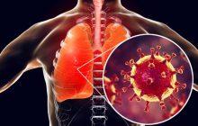 Santa Helena tem 20 casos ativos de Coronavírus