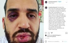 Médico é agredido por familiar após alertar sobre riscos da Covid-19, no Paraná